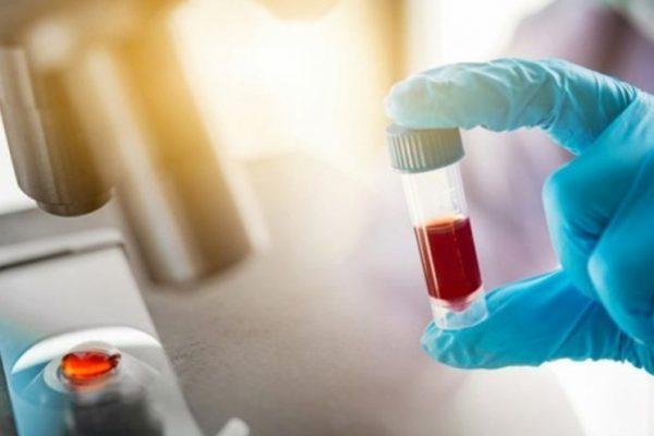 «Мираторг» приобрел 50% компании «Гепаринус» у «дочки» Van Hessen Group